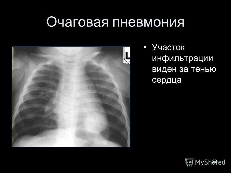 28 Очаговая пневмония Участок инфильтрации виден за тенью сердца
