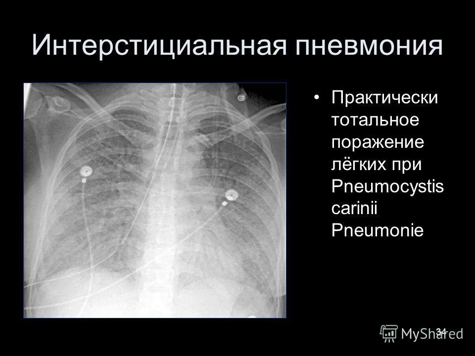 34 Интерстициальная пневмония Практически тотальное поражение лёгких при Pneumocystis carinii Pneumonie