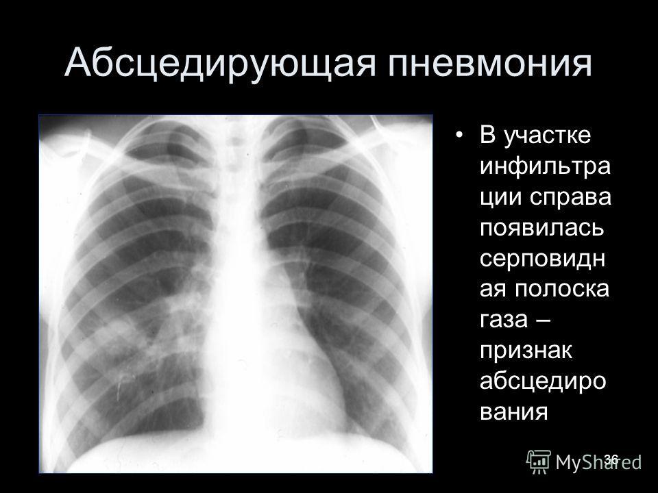 36 Абсцедирующая пневмония В участке инфильтра ции справа появилась серповидн ая полоска газа – признак абсцедиро вания