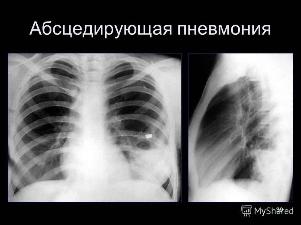 39 Абсцедирующая пневмония