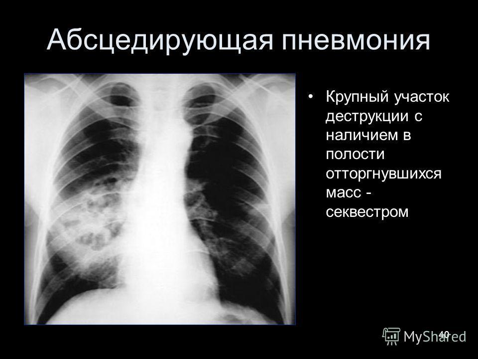 40 Абсцедирующая пневмония Крупный участок деструкции с наличием в полости отторгнувшихся масс - секвестром