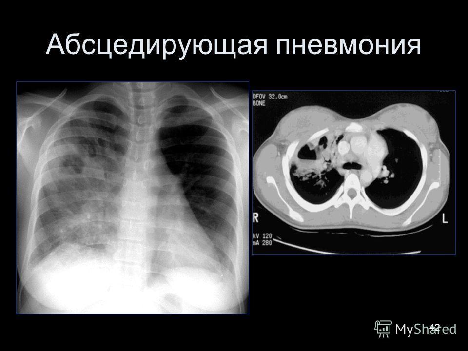 42 Абсцедирующая пневмония
