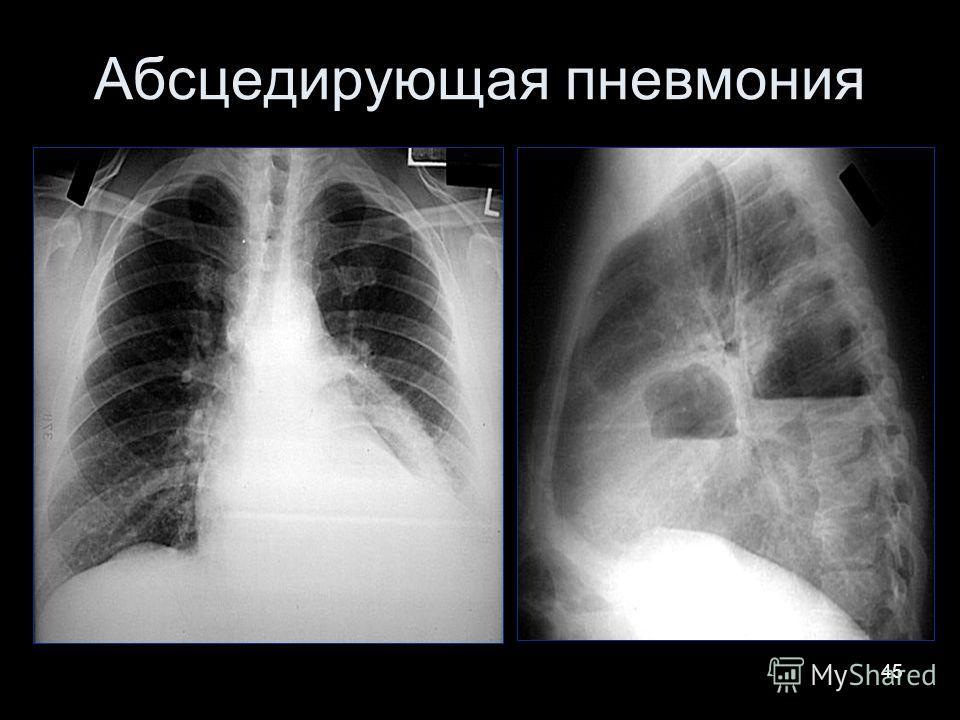 45 Абсцедирующая пневмония