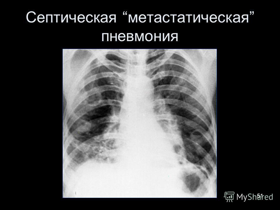 51 Септическая метастатическая пневмония