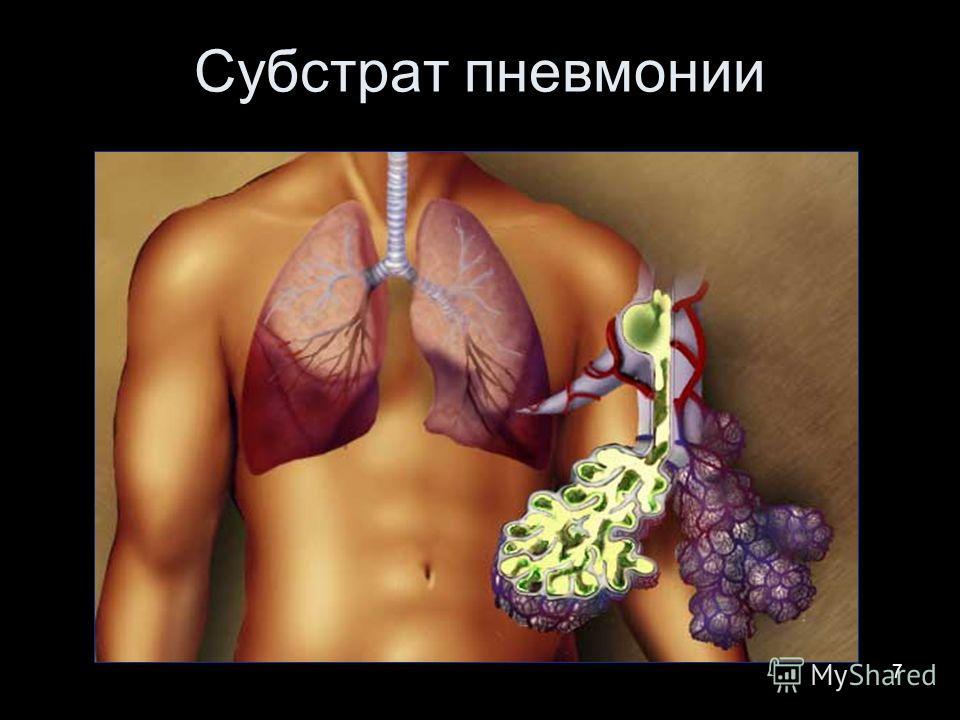 7 Субстрат пневмонии