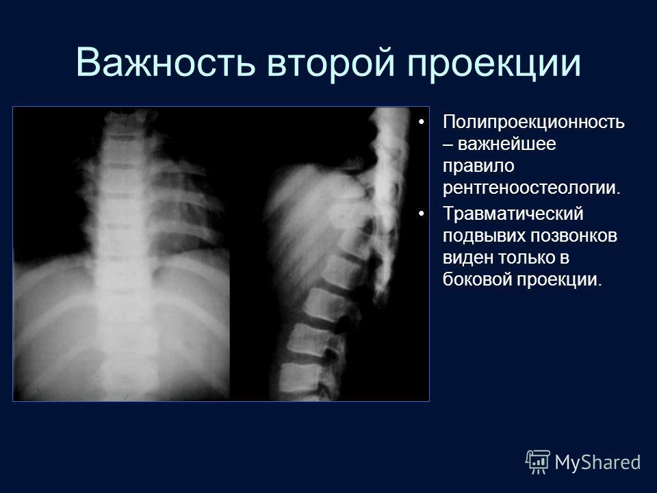 Важность второй проекции Полипроекционность – важнейшее правило рентгеноостеологии. Травматический подвывих позвонков виден только в боковой проекции.