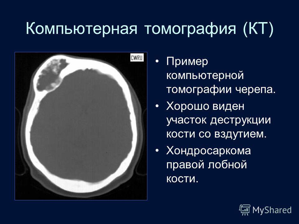 Компьютерная томография (КТ) Пример компьютерной томографии черепа. Хорошо виден участок деструкции кости со вздутием. Хондросаркома правой лобной кости.
