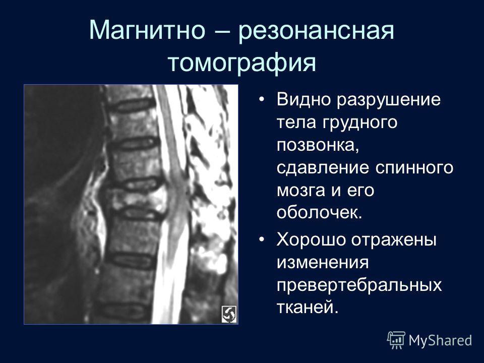Магнитно – резонансная томография Видно разрушение тела грудного позвонка, сдавление спинного мозга и его оболочек. Хорошо отражены изменения превертебральных тканей.