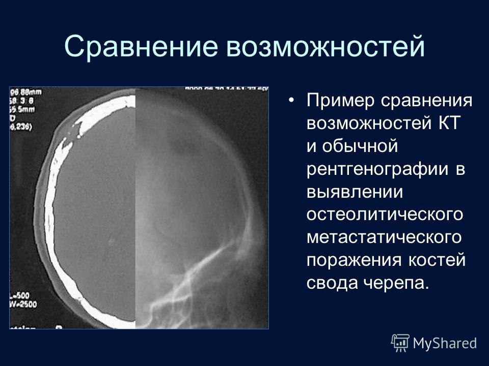 Сравнение возможностей Пример сравнения возможностей КТ и обычной рентгенографии в выявлении остеолитического метастатического поражения костей свода черепа.
