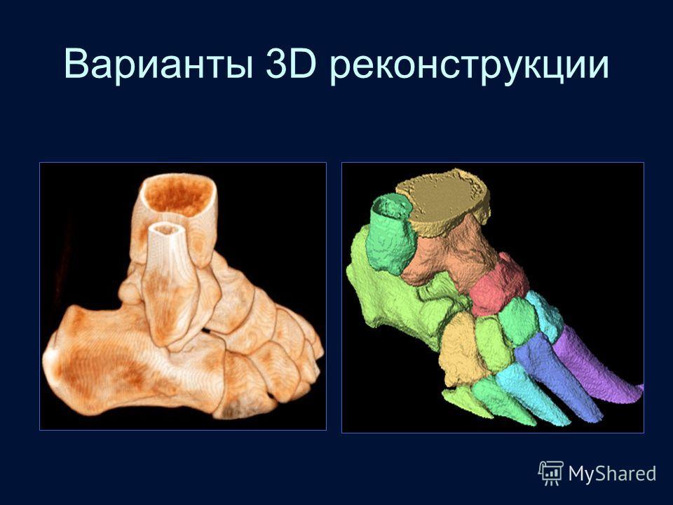 Варианты 3D реконструкции