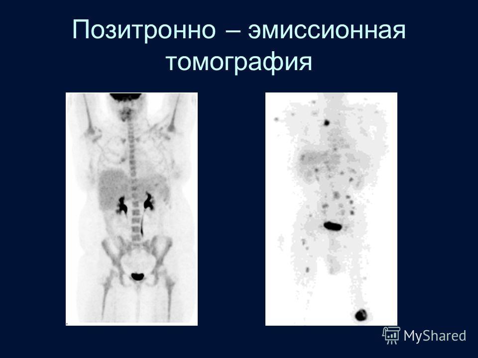 Позитронно – эмиссионная томография