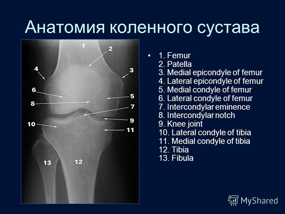 Анатомия коленного сустава 1. Femur 2. Patella 3. Medial epicondyle of femur 4. Lateral epicondyle of femur 5. Medial condyle of femur 6. Lateral condyle of femur 7. Intercondylar eminence 8. Intercondylar notch 9. Knee joint 10. Lateral condyle of t