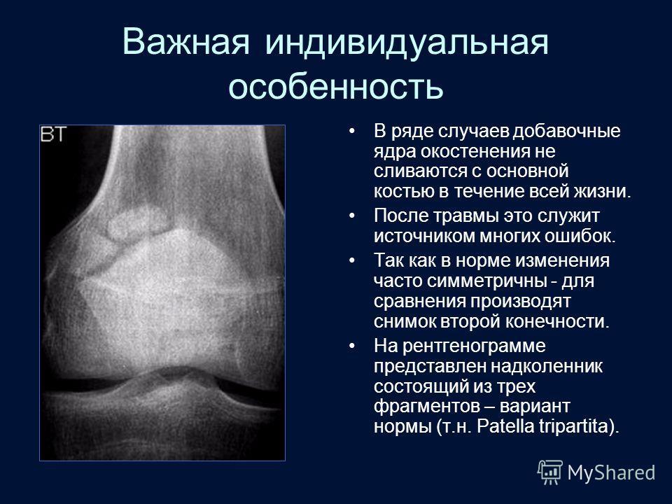 Важная индивидуальная особенность В ряде случаев добавочные ядра окостенения не сливаются с основной костью в течение всей жизни. После травмы это служит источником многих ошибок. Так как в норме изменения часто симметричны - для сравнения производят