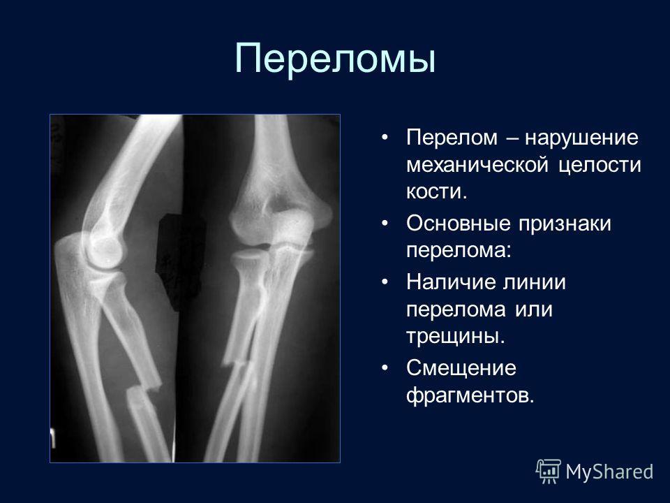 Переломы Перелом – нарушение механической целости кости. Основные признаки перелома: Наличие линии перелома или трещины. Смещение фрагментов.