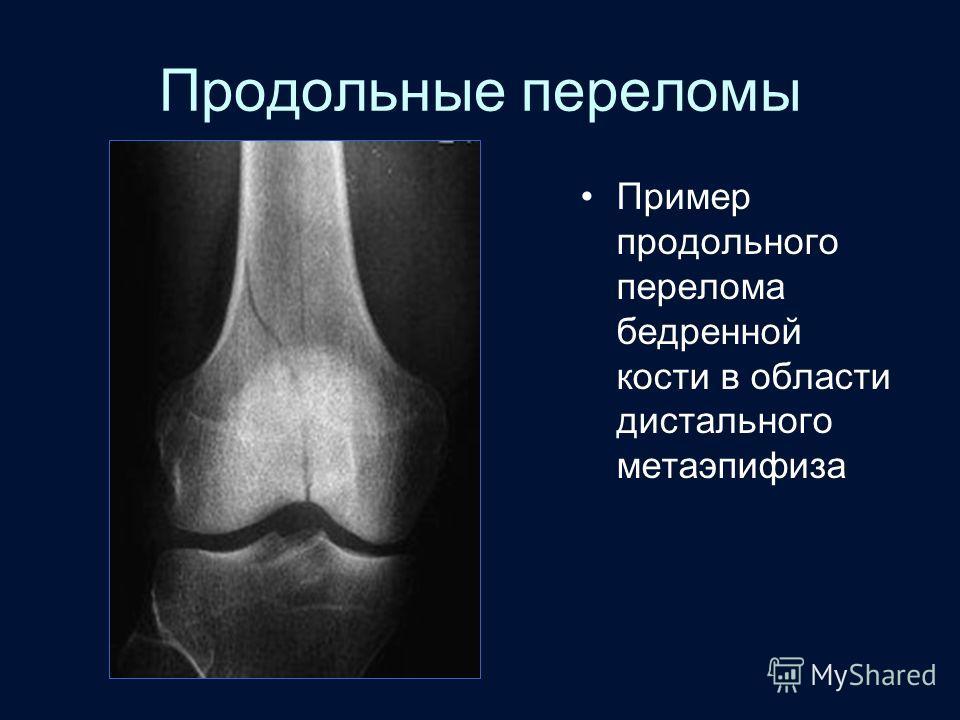 Продольные переломы Пример продольного перелома бедренной кости в области дистального метаэпифиза