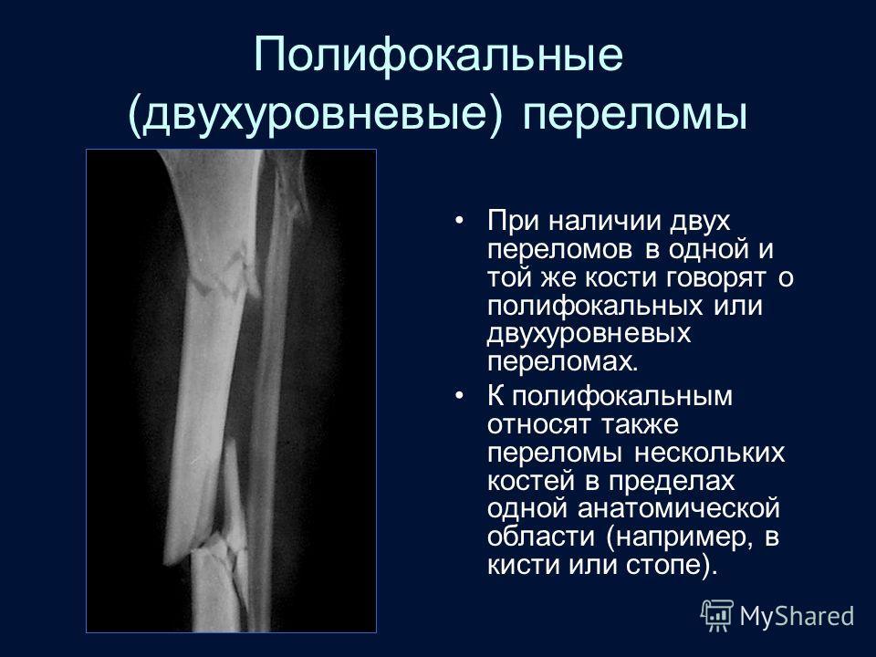 Полифокальные (двухуровневые) переломы При наличии двух переломов в одной и той же кости говорят о полифокальных или двухуровневых переломах. К полифокальным относят также переломы нескольких костей в пределах одной анатомической области (например, в