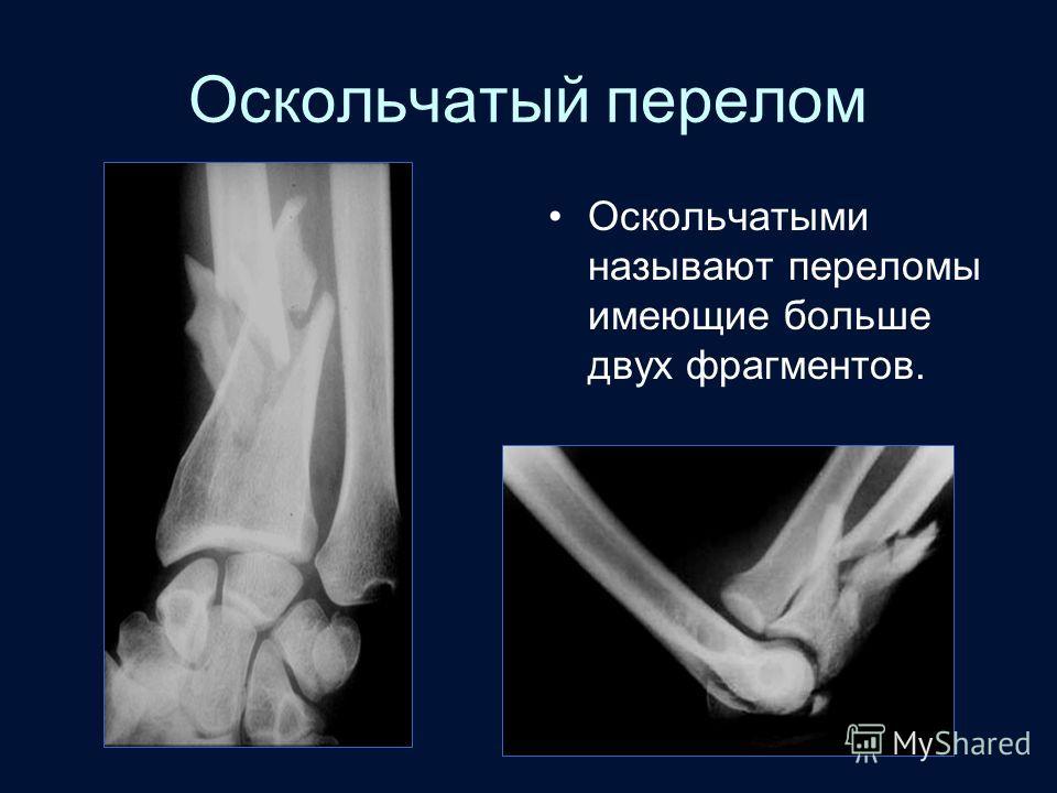 Оскольчатый перелом Оскольчатыми называют переломы имеющие больше двух фрагментов.