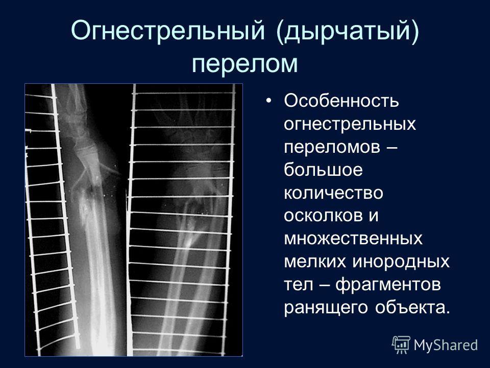 Огнестрельный (дырчатый) перелом Особенность огнестрельных переломов – большое количество осколков и множественных мелких инородных тел – фрагментов ранящего объекта.