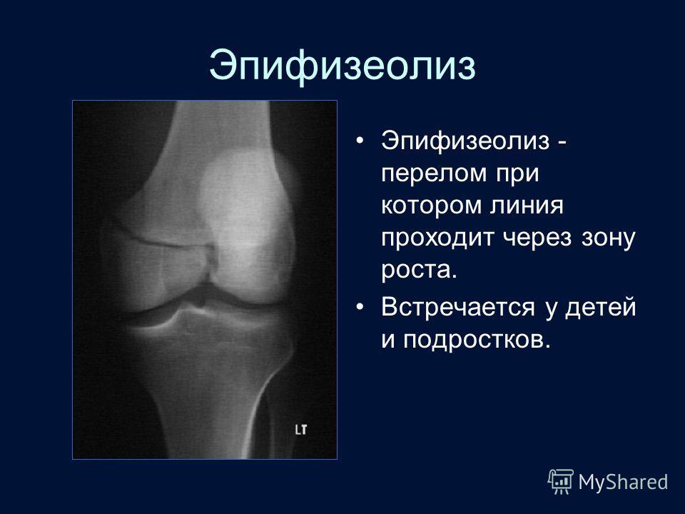 Эпифизеолиз Эпифизеолиз - перелом при котором линия проходит через зону роста. Встречается у детей и подростков.