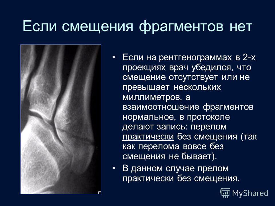 Если смещения фрагментов нет Если на рентгенограммах в 2-х проекциях врач убедился, что смещение отсутствует или не превышает нескольких миллиметров, а взаимоотношение фрагментов нормальное, в протоколе делают запись: перелом практически без смещения