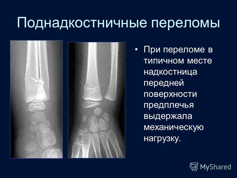 Поднадкостничные переломы При переломе в типичном месте надкостница передней поверхности предплечья выдержала механическую нагрузку.