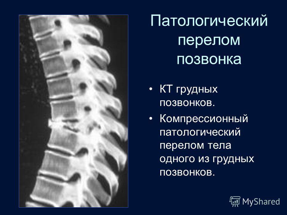 Патологический перелом позвонка КТ грудных позвонков. Компрессионный патологический перелом тела одного из грудных позвонков.