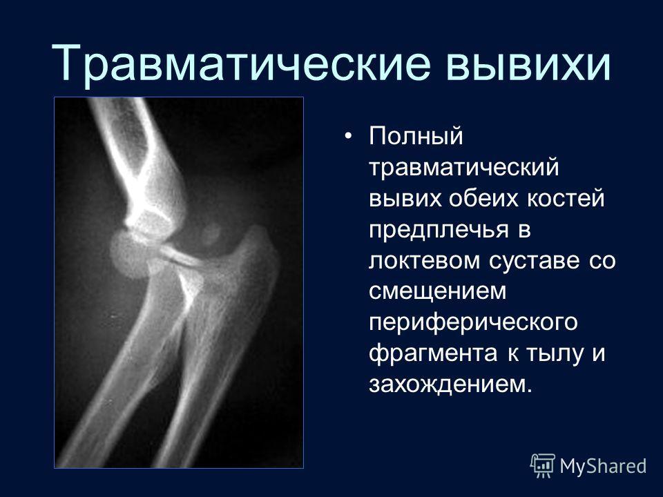 Травматические вывихи суставов презентация упражнения коленного сустава после операции