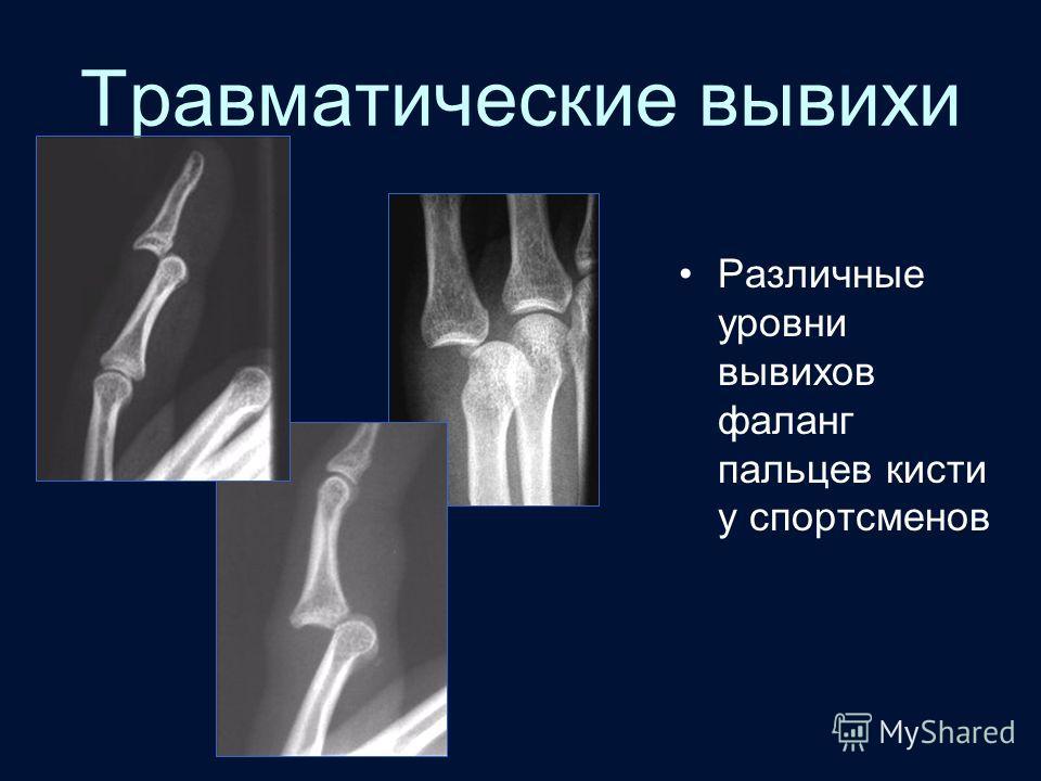 Травматические вывихи Различные уровни вывихов фаланг пальцев кисти у спортсменов