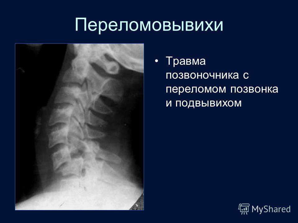 Переломовывихи Травма позвоночника с переломом позвонка и подвывихом