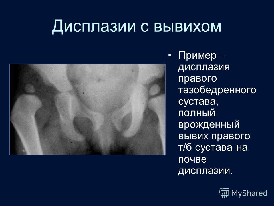 дисплазия плечевого сустава у взрослых лечение