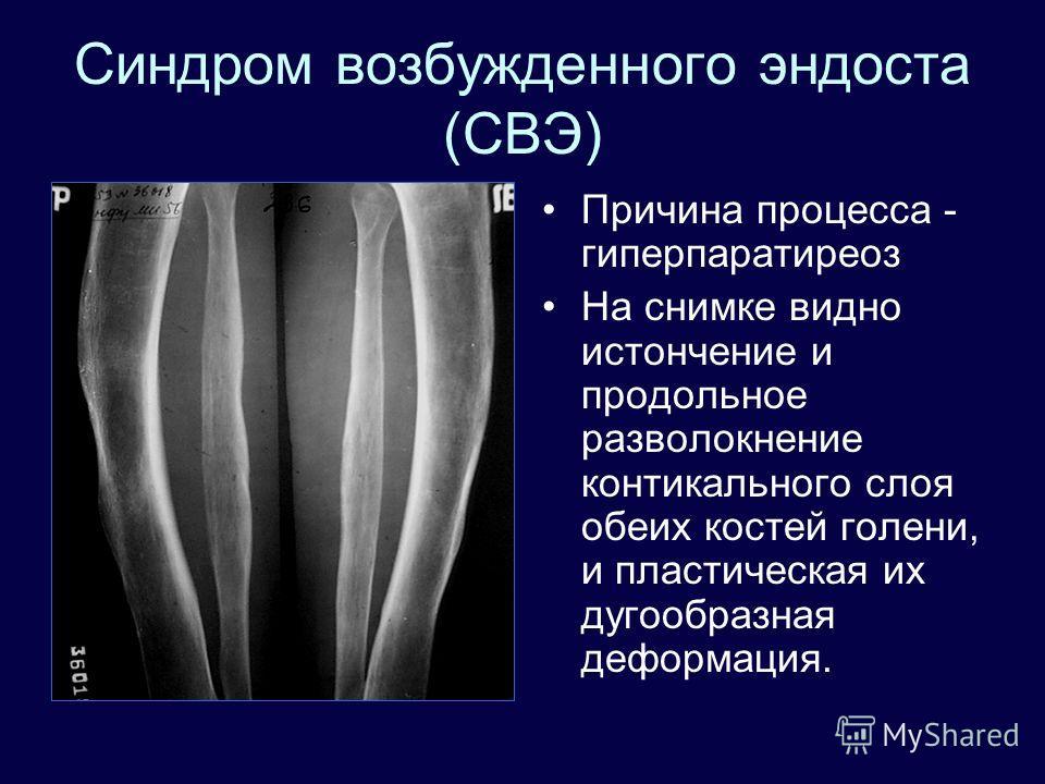 Синдром возбужденного эндоста (СВЭ) Причина процесса - гиперпаратиреоз На снимке видно истончение и продольное разволокнение контикального слоя обеих костей голени, и пластическая их дугообразная деформация.