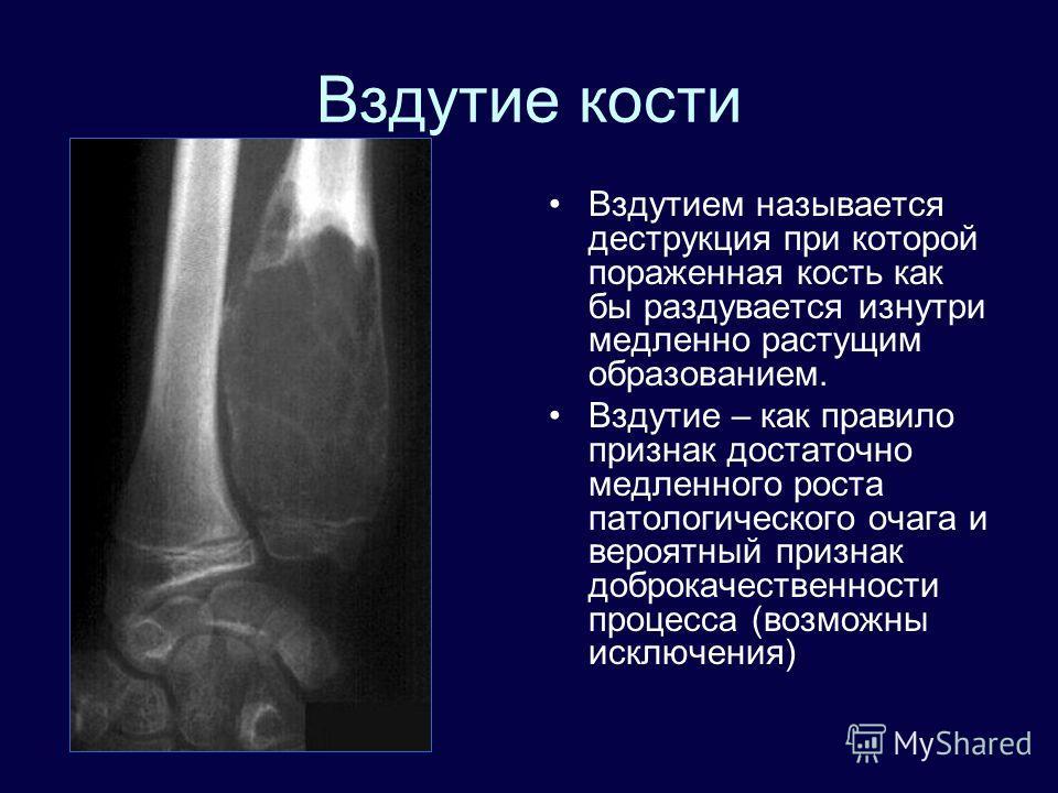 Вздутие кости Вздутием называется деструкция при которой пораженная кость как бы раздувается изнутри медленно растущим образованием. Вздутие – как правило признак достаточно медленного роста патологического очага и вероятный признак доброкачественнос