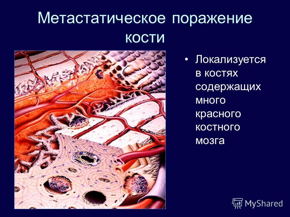Метастатическое поражение кости Локализуется в костях содержащих много красного костного мозга