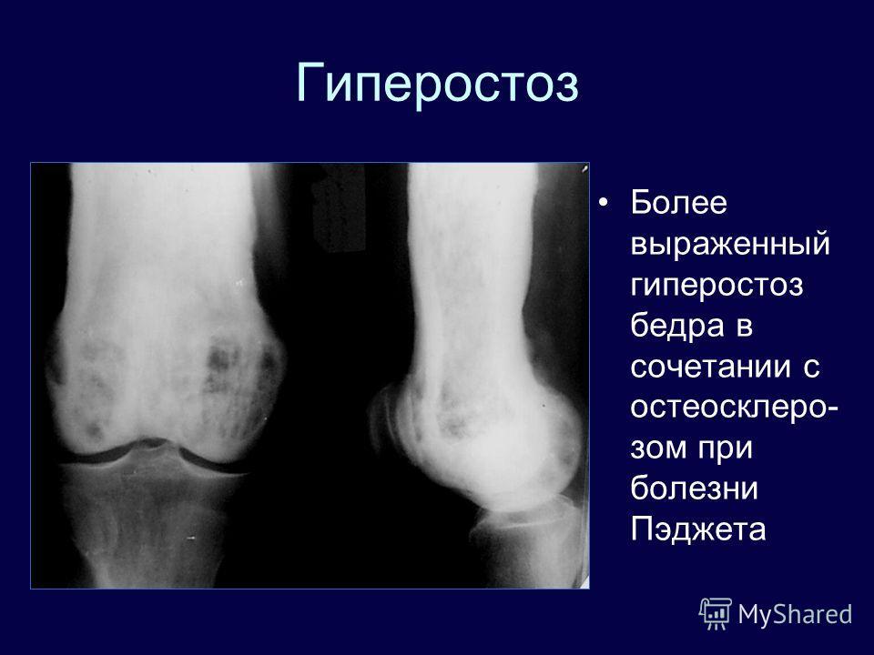 Гиперостоз Более выраженный гиперостоз бедра в сочетании с остеосклеро- зом при болезни Пэджета