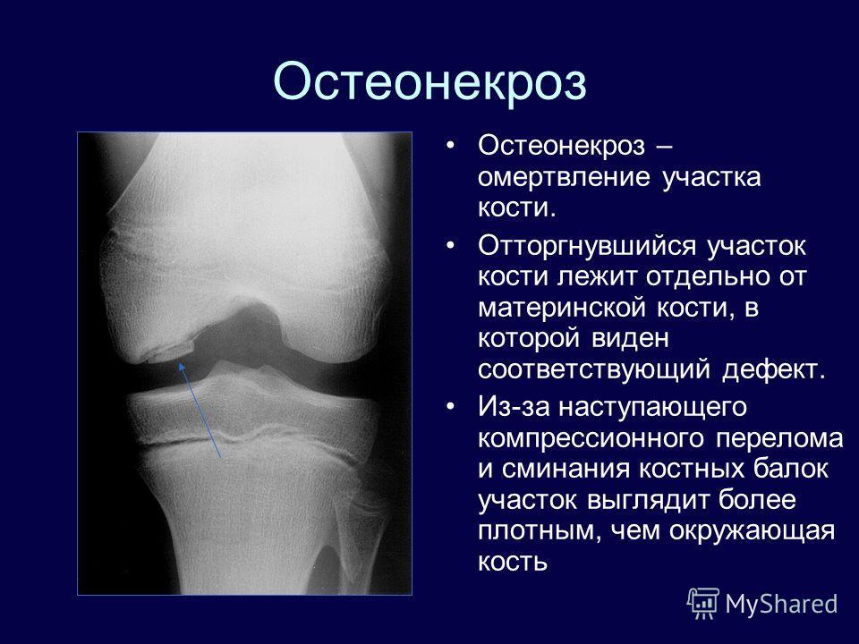 Остеонекроз Остеонекроз – омертвление участка кости. Отторгнувшийся участок кости лежит отдельно от материнской кости, в которой виден соответствующий дефект. Из-за наступающего компрессионного перелома и сминания костных балок участок выглядит более