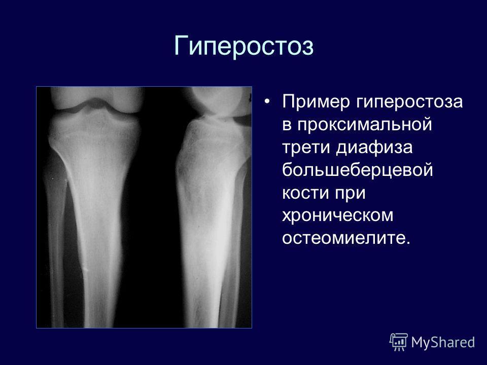 Гиперостоз Пример гиперостоза в проксимальной трети диафиза большеберцевой кости при хроническом остеомиелите.