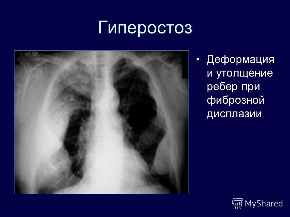 Гиперостоз Деформация и утолщение ребер при фиброзной дисплазии