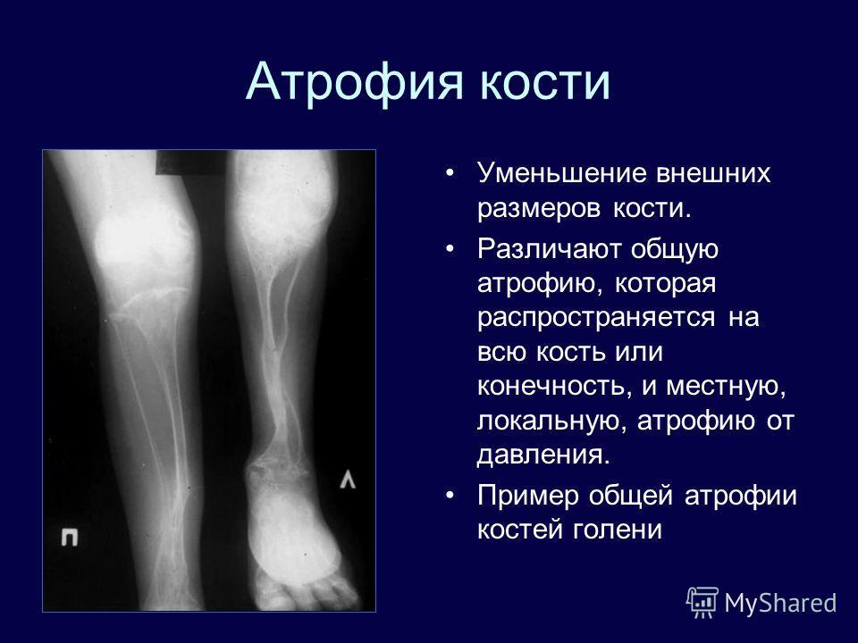 Атрофия кости Уменьшение внешних размеров кости. Различают общую атрофию, которая распространяется на всю кость или конечность, и местную, локальную, атрофию от давления. Пример общей атрофии костей голени