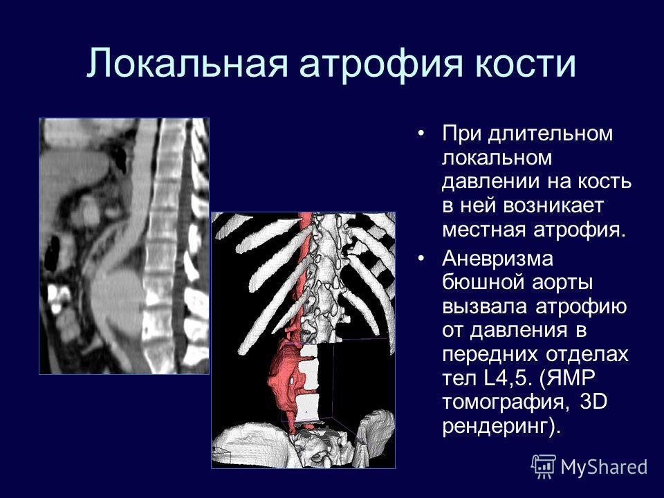 Локальная атрофия кости При длительном локальном давлении на кость в ней возникает местная атрофия. Аневризма бюшной аорты вызвала атрофию от давления в передних отделах тел L4,5. (ЯМР томография, 3D рендеринг).