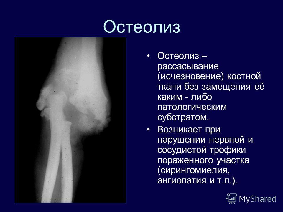 Остеолиз Остеолиз – рассасывание (исчезновение) костной ткани без замещения её каким - либо патологическим субстратом. Возникает при нарушении нервной и сосудистой трофики пораженного участка (сирингомиелия, ангиопатия и т.п.).
