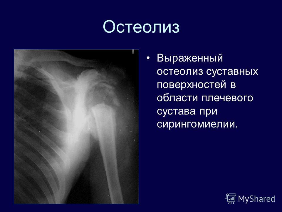 Остеолиз Выраженный остеолиз суставных поверхностей в области плечевого сустава при сирингомиелии.