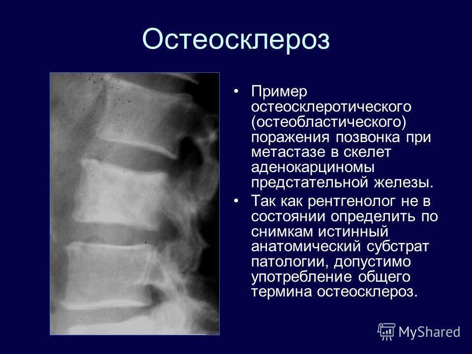 Остеосклероз Пример остеосклеротического (остеобластического) поражения позвонка при метастазе в скелет аденокарциномы предстательной железы. Так как рентгенолог не в состоянии определить по снимкам истинный анатомический субстрат патологии, допустим