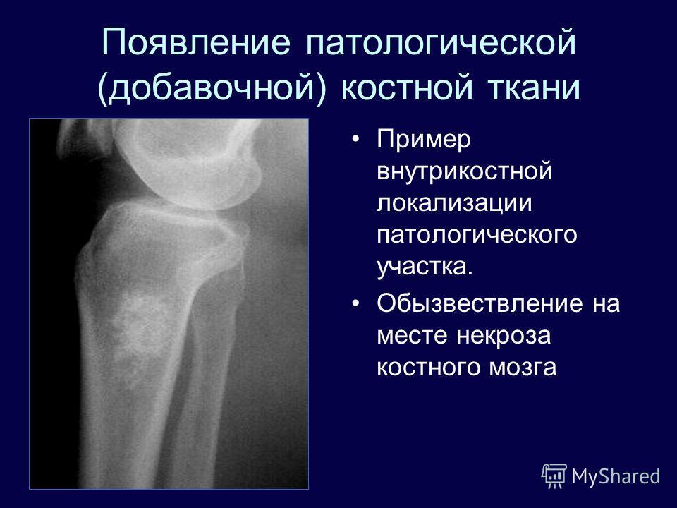 Появление патологической (добавочной) костной ткани Пример внутрикостной локализации патологического участка. Обызвествление на месте некроза костного мозга
