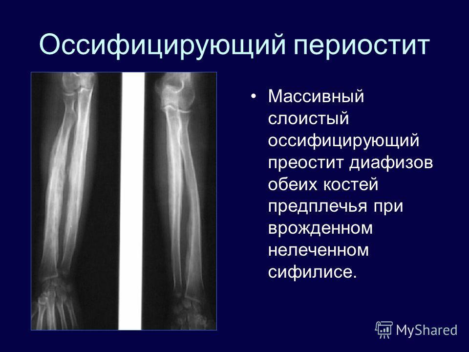 Оссифицирующий периостит Массивный слоистый оссифицирующий преостит диафизов обеих костей предплечья при врожденном нелеченном сифилисе.