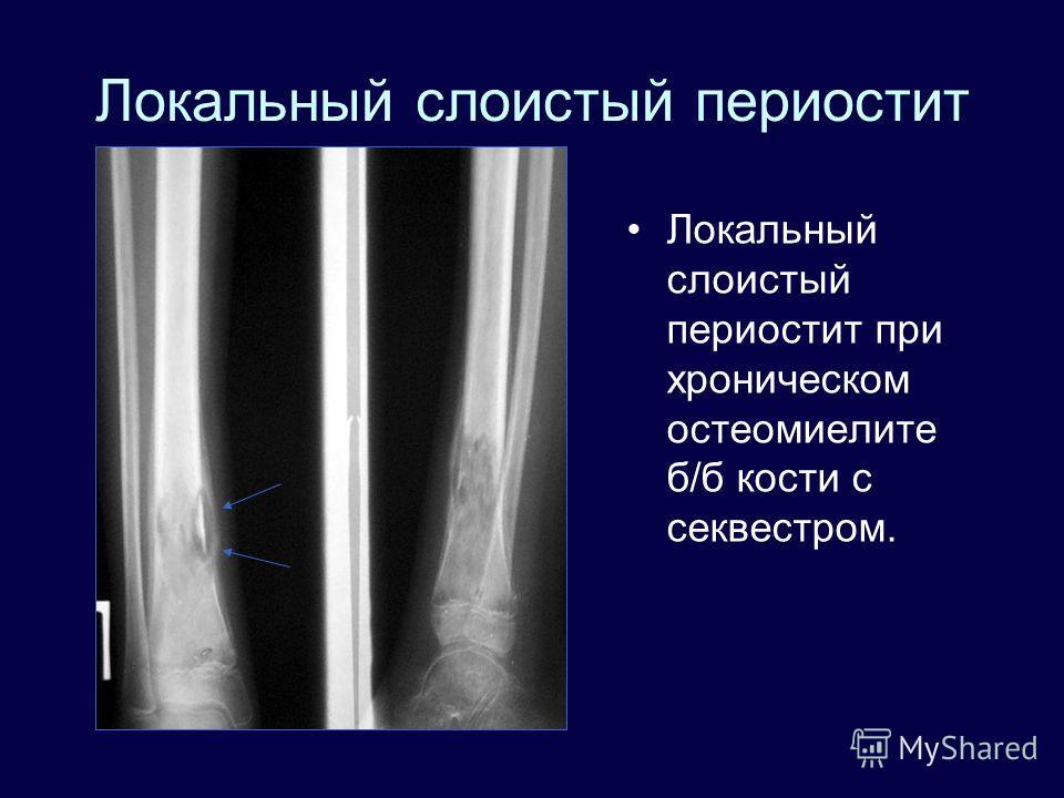 Локальный слоистый периостит Локальный слоистый периостит при хроническом остеомиелите б/б кости с секвестром.