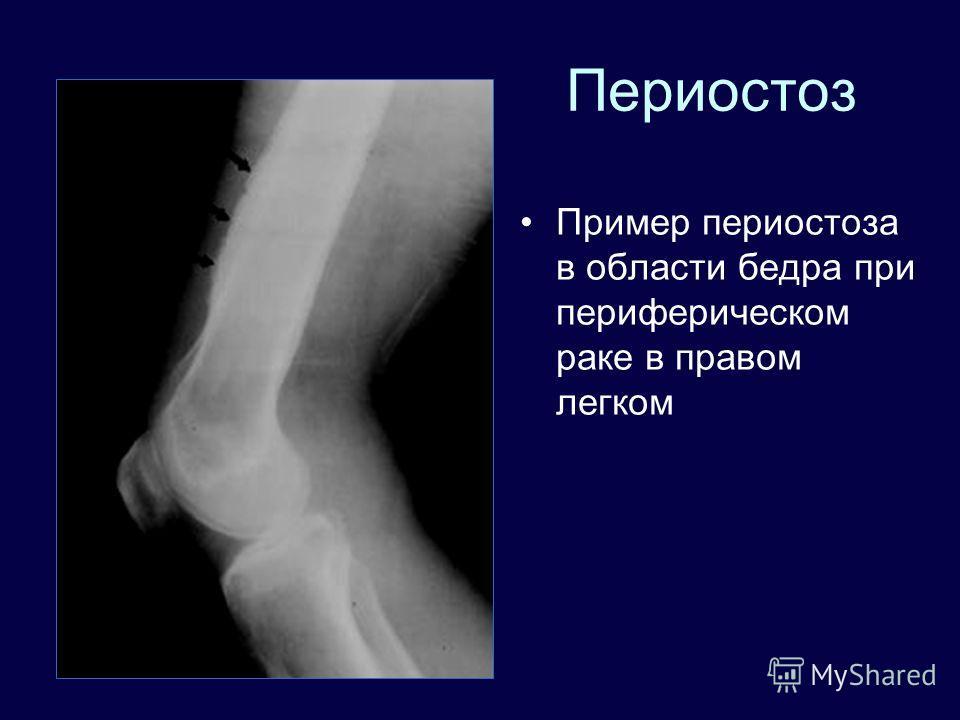 Периостоз Пример периостоза в области бедра при периферическом раке в правом легком