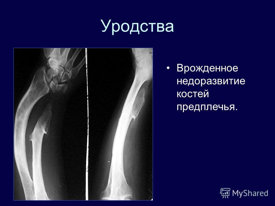 Уродства Врожденное недоразвитие костей предплечья.