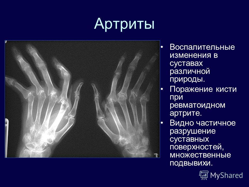 Артриты Воспалительные изменения в суставах различной природы. Поражение кисти при ревматоидном артрите. Видно частичное разрушение суставных поверхностей, множественные подвывихи.