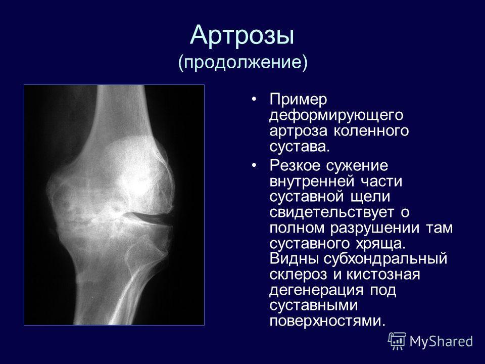 Артрозы (продолжение) Пример деформирующего артроза коленного сустава. Резкое сужение внутренней части суставной щели свидетельствует о полном разрушении там суставного хряща. Видны субхондральный склероз и кистозная дегенерация под суставными поверх