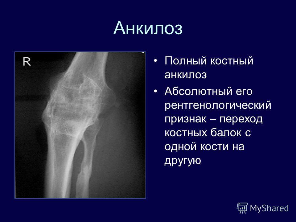 Анкилоз Полный костный анкилоз Абсолютный его рентгенологический признак – переход костных балок с одной кости на другую